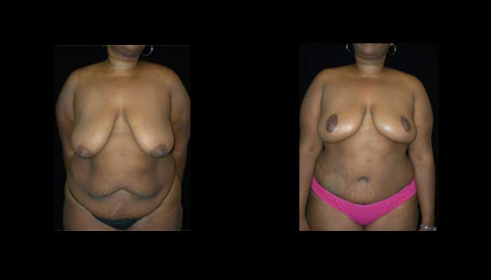 Breast Reduction Patient 14 Before & After