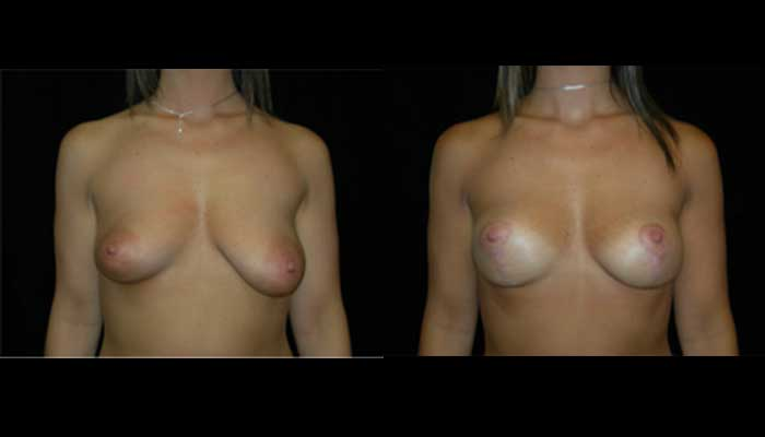 Breast Reduction Patient 15 Before & After
