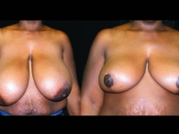 Breast Reduction Patient 3 Before & After