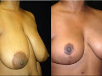 Breast Reduction Patient 5 Before & After