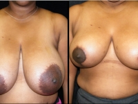 Breast Reduction Patient 8 Before & After