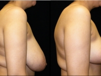 Breast Reduction Patient 9 Before & After