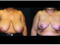 Breast Reduction Patient 1 Before & After