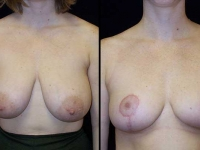 Breast Reduction Patient 24 Before & After