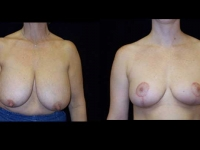 Breast Reduction Patient 19 Before & After