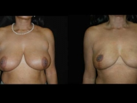 Breast Reduction Patient 22 Before & After