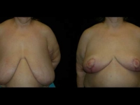 Breast Reduction Patient 11 Before & After