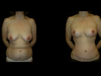 Breast Reduction Patient 16 Before & After