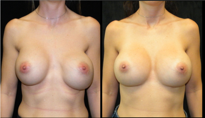Atlanta Breast Revision Patient 2 Before & After