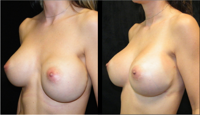 Atlanta Breast Revision Patient 3 Before & After