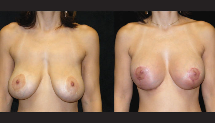 Atlanta Breast Revision Patient 1 Before & After