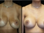 Breast Revison