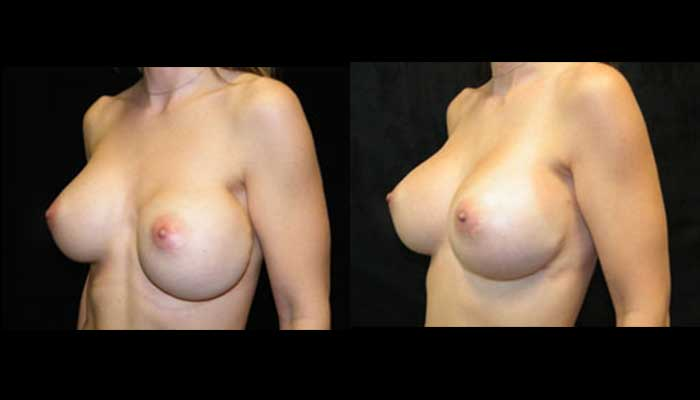 Atlanta Breast Revision Patient 6 Before & After