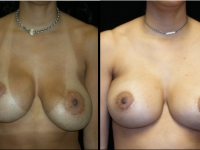 Atlanta Breast Revision Patient 4 Before & After
