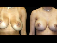 Atlanta Breast Revision Patient 5 Before & After