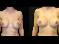 Atlanta Breast Revision Patient 7 Before & After