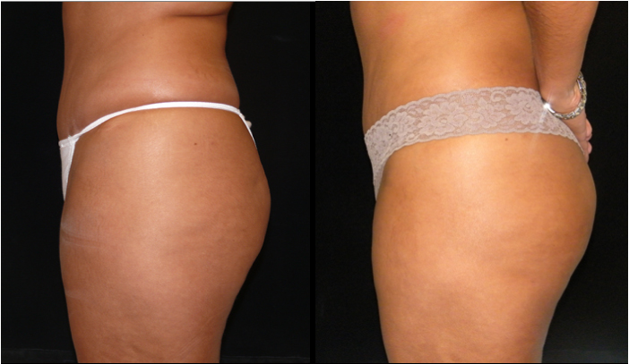 Atlanta Butt Augmentation Patient 3 Before & After