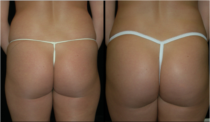 Atlanta Butt Augmentation Patient 4 Before & After