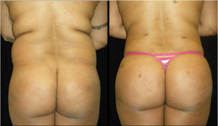 Atlanta Butt Augmentation Patient 5 Before & After