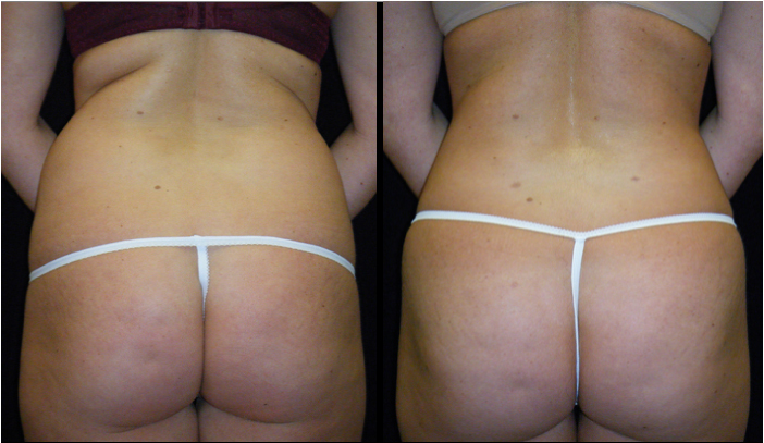 Atlanta Butt Augmentation Patient 6 Before & After