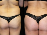 Atlanta Butt Augmentation Patient 1 Before & After