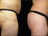 Atlanta Butt Augmentation Patient 2 Before & After