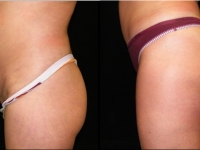 Atlanta Butt Augmentation Patient 7 Before & After