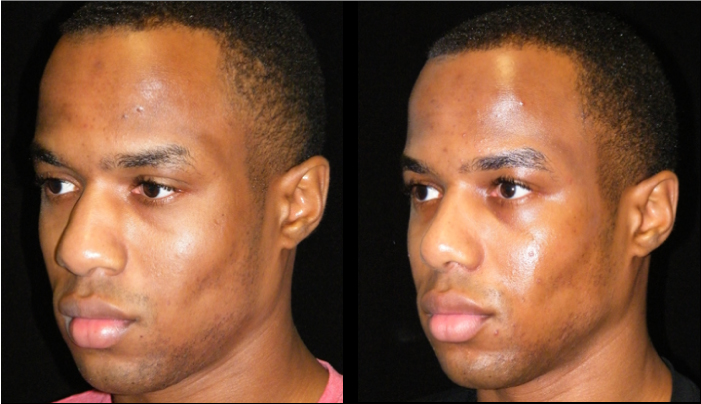 Atlanta Ethnic Rhinoplasty Patient 17 Before & After