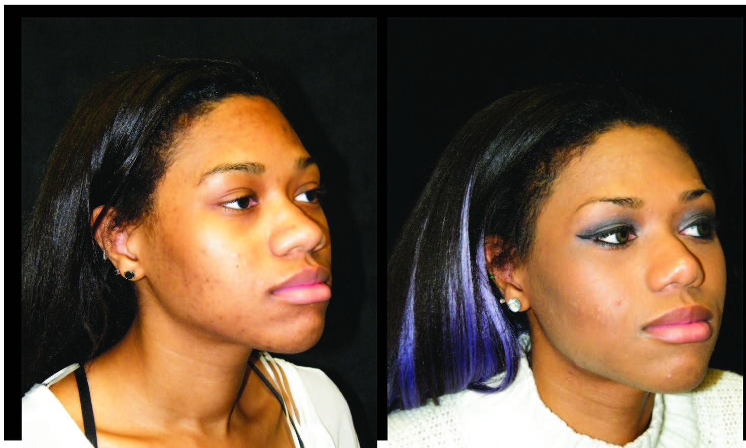 Atlanta Ethnic Rhinoplasty Patient 1 Before & After