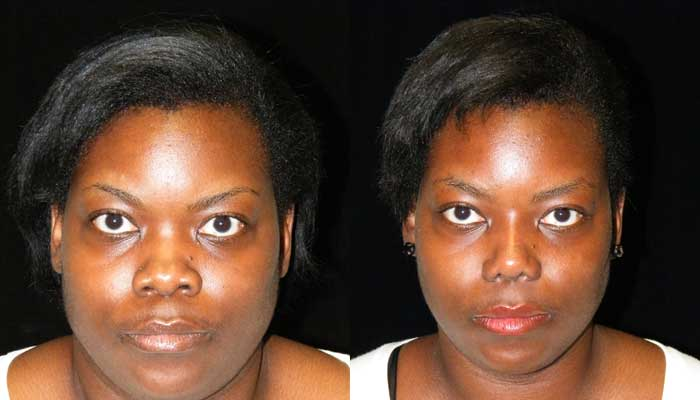 Atlanta Ethnic Rhinoplasty Patient 6 Before & After