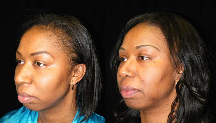 Atlanta Ethnic Rhinoplasty Patient 3 Before & After