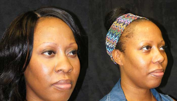 Atlanta Ethnic Rhinoplasty Patient 8 Before & After