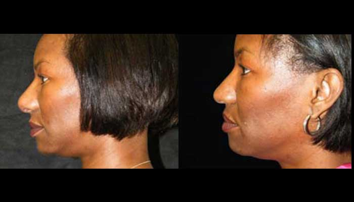 Atlanta Ethnic Rhinoplasty Patient 9 Before & After
