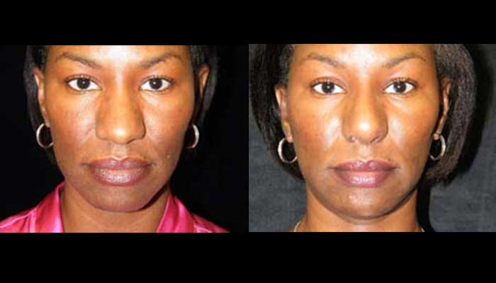 Atlanta Ethnic Rhinoplasty Patient 10 Before & After