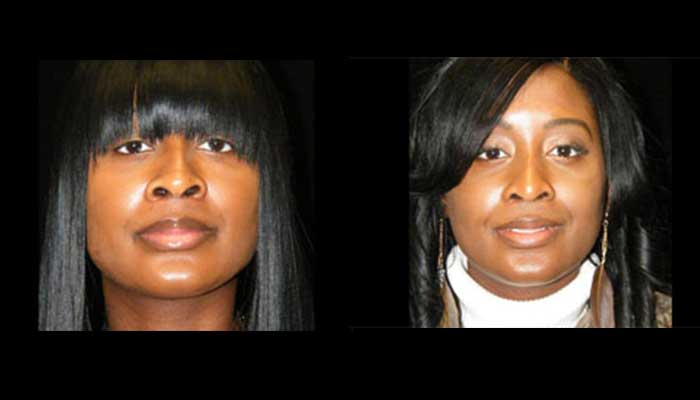 Atlanta Ethnic Rhinoplasty Patient 11 Before & After