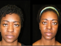 Atlanta Ethnic Rhinoplasty Patient 15 Before & After