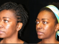 Atlanta Ethnic Rhinoplasty Patient 5 Before & After