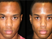 Atlanta Ethnic Rhinoplasty Patient 16 Before & After