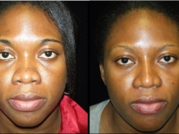 Atlanta Ethnic Rhinoplasty Patient 7 Before & After