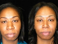 Atlanta Ethnic Rhinoplasty Patient 2 Before & After