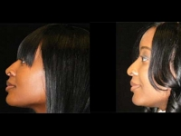 Atlanta Ethnic Rhinoplasty Patient 12 Before & After