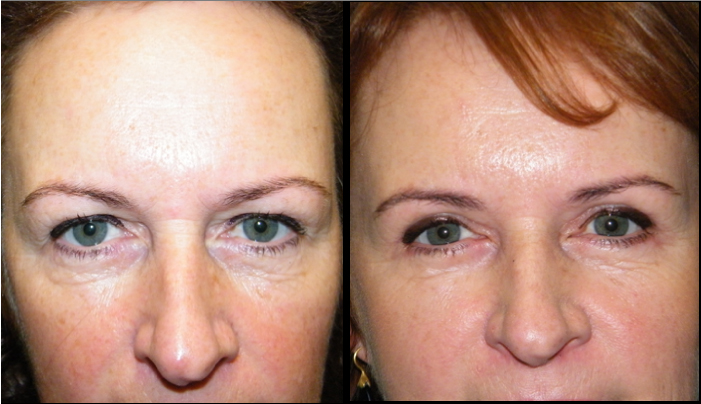 Atlanta Eyelid Surgery Patient 19 Before & After
