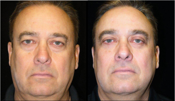 Atlanta Eyelid Surgery Patient 21 Before & After
