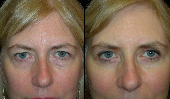 Atlanta Eyelid Surgery Patient 22 Before & After