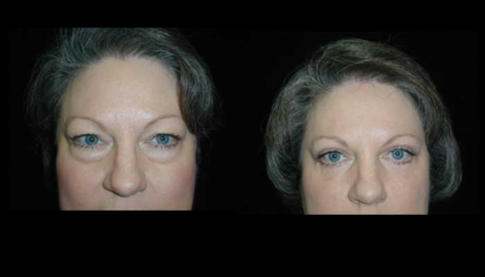 Atlanta Eyelid Surgery Patient 10 Before & After
