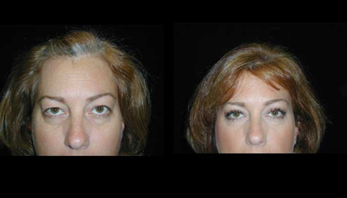 Atlanta Eyelid Surgery Patient 11 Before & After