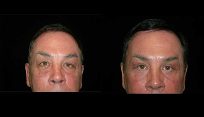 Atlanta Eyelid Surgery Patient 12 Before & After