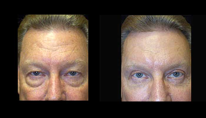 Atlanta Eyelid Surgery Patient 15 Before & After