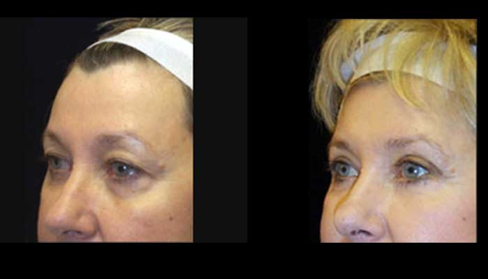 Atlanta Eyelid Surgery Patient 16 Before & After