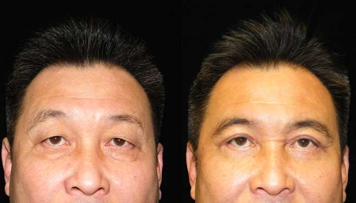 Atlanta Eyelid Surgery Patient 24 Before & After